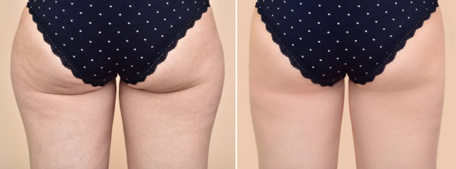 fluid drainage and smoothing out any lumpy fat cells