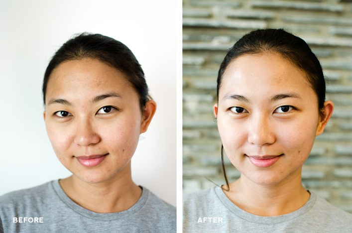 Biologique Recherche Facial Treatment Before and After