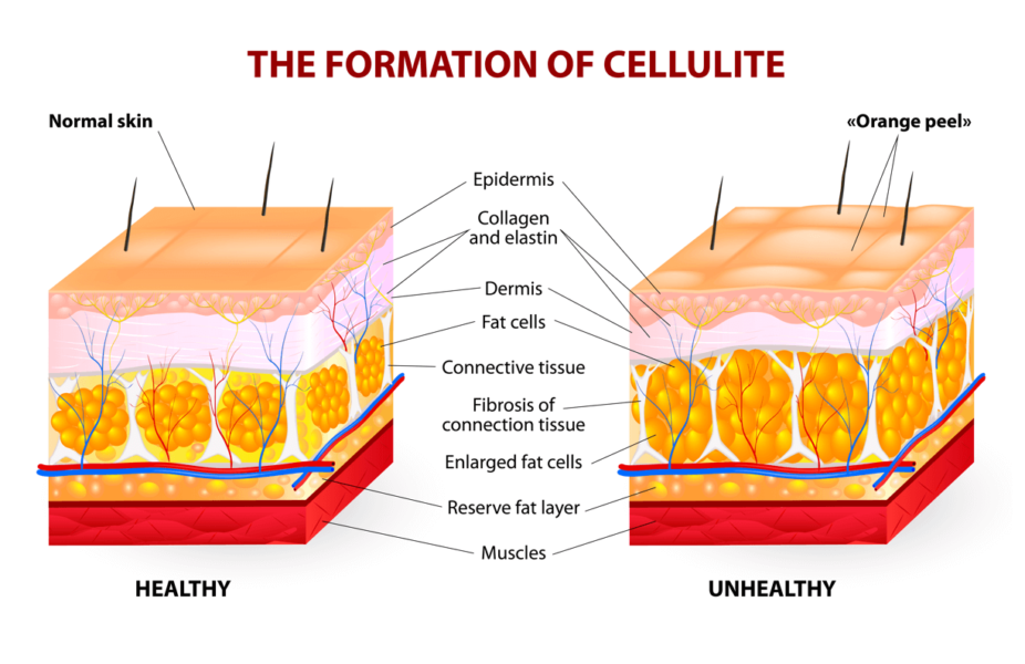 Formation-Of-Cellulite