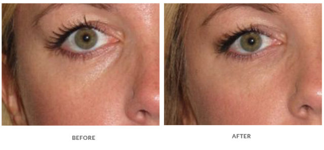 Valmont Skincare Before and After