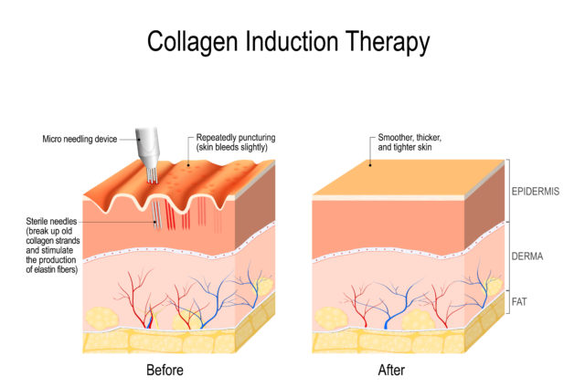 Collagen induction therapy (microneedling) is a surgical for remove wrinkles, scars, stretch, marks, pigmentation. skin needling procedure, repeatedly puncturing the skin with tiny